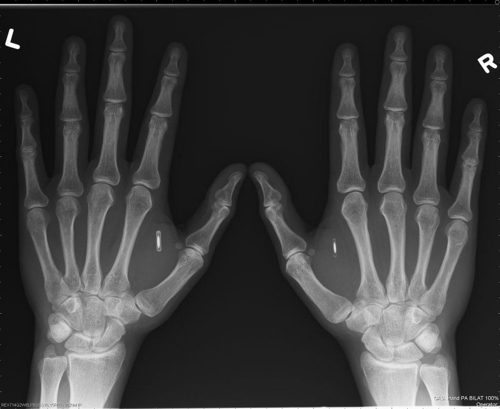 Amal Graafstra X-Ray (2006-03-30)